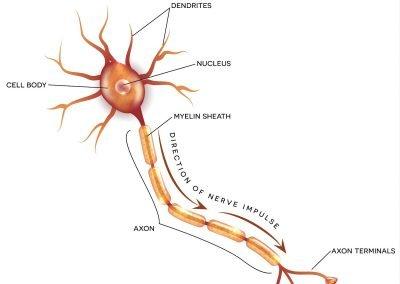 ezgif 5 37cc77b9a36d 400x284 - Autoimmune Encephalitis