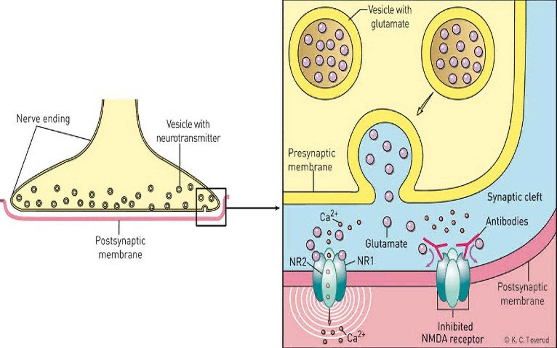 Autoimmune Enzephalitis