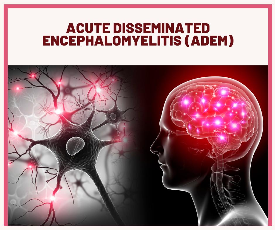 Acute disseminated encephalomyelitis ADEM fact sheet FB 1 - Autoimmune Encephalitis Handouts and Fact Sheets
